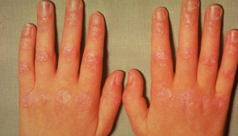 keratoderma blennorrhagicum pictures 3