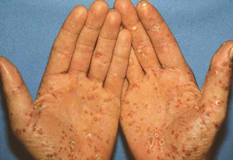keratoderma blennorrhagicum pictures 4