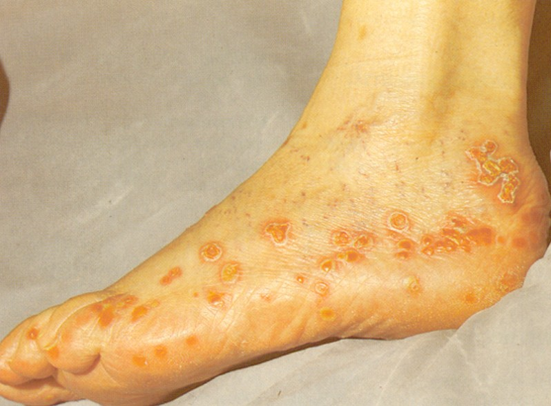 Common Skin Infections – Cleveland Clinic