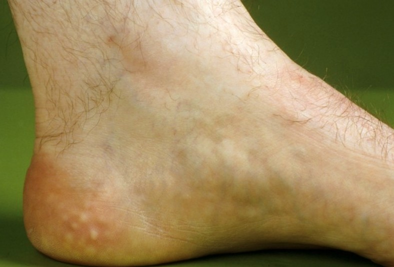Piezogenic Pedal Papules - Treatment, Pictures, Diagnosis