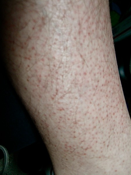 Rash on Arms and Legs - New Health Advisor