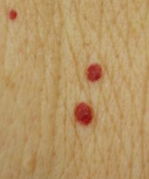 red moles pictures 4