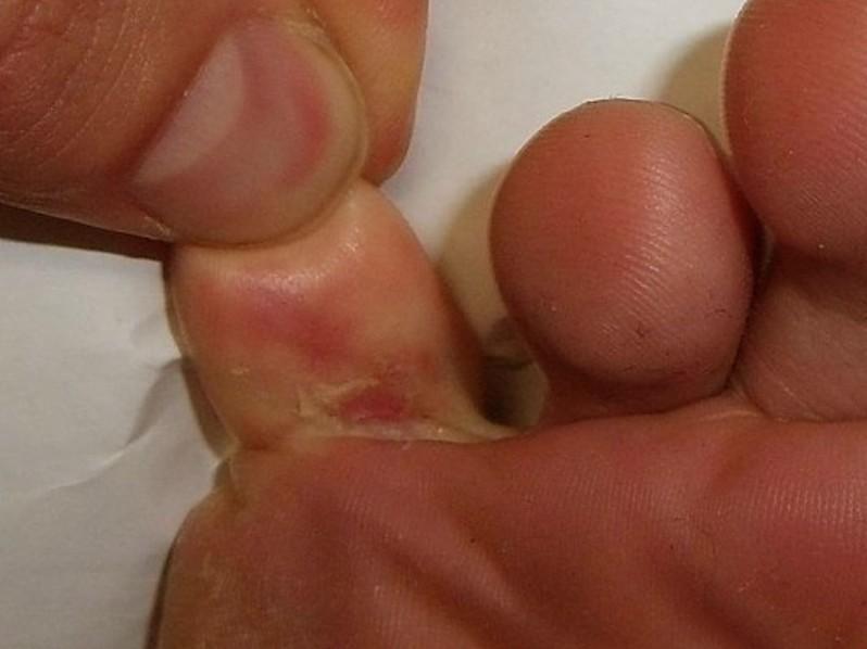 skin peeling between toes pictures 3