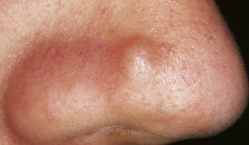 Staph Infection and Cellulitis - WebMD