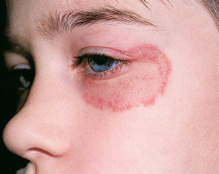 Tinea Faciei Pictures Symptoms Causes Treatment