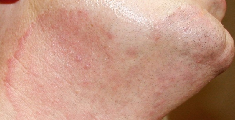 Pityriasis versicolor | Primary Care Dermatology Society | UK