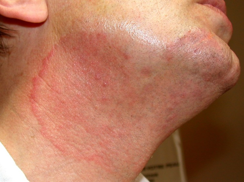 Tinea Versicolor: Cause, Symptoms, and Treatments