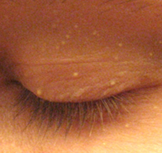 white bump on eyelid pictures 2
