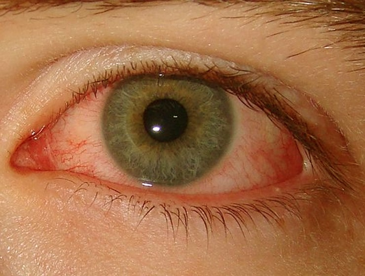 conjunctival hyperemia pictures