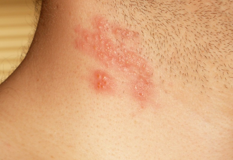 herpes gladiatorum pictures 2