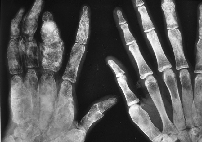 fibrous dysplasia pictures