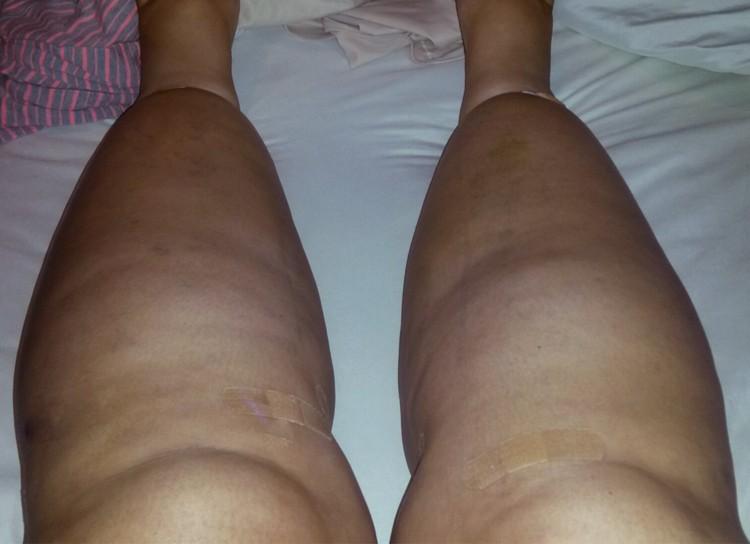 Lipedema - Pictures, Treatment, Diet, Symptoms, Natural Cure