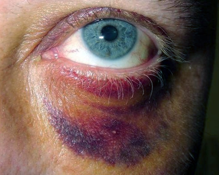 periorbital ecchymosis pictures