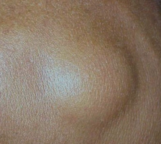 angiolipoma pictures