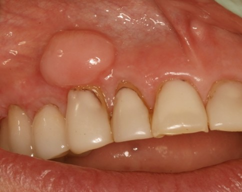 lump on gums pictures 2