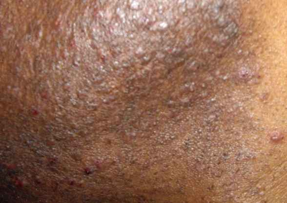infected hair follicles by shaving with razor