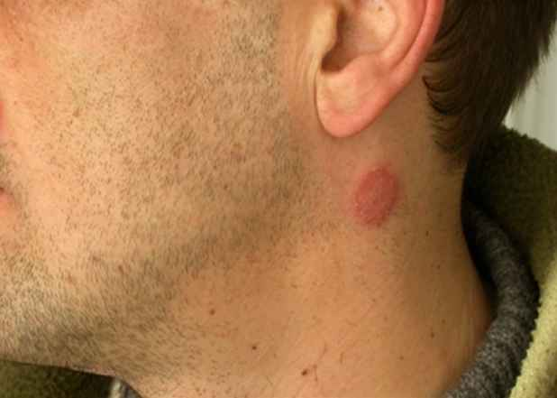 rash on neck because of ringworm