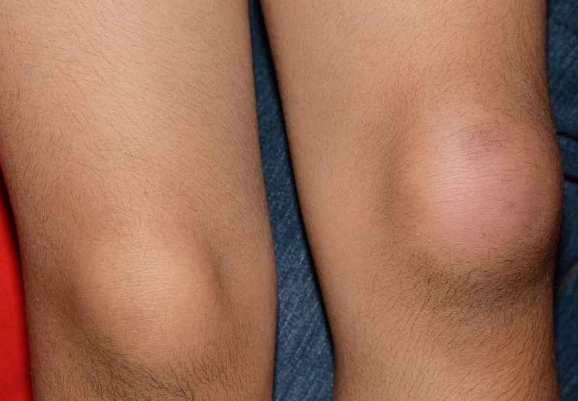 Swollen Kneecap Symptoms Causes Treatment And Pictures